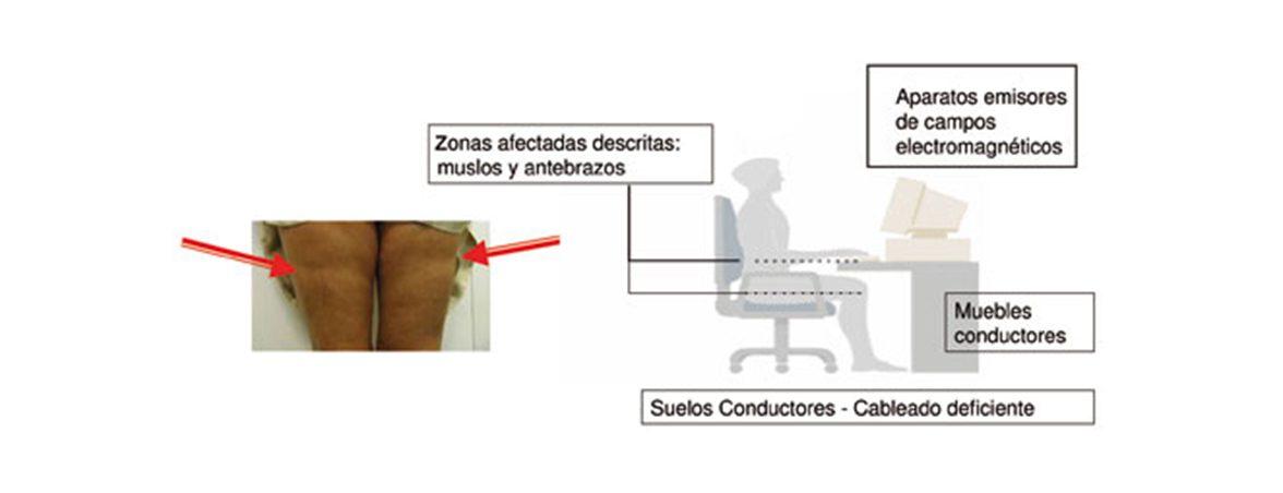 Lipoatrofia semicircular | Muebles de Oficina Spacio